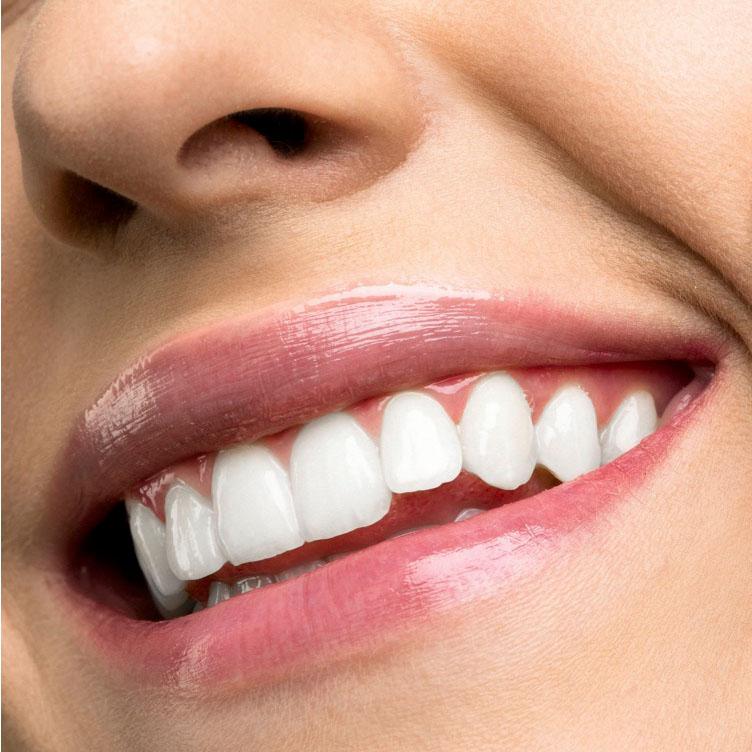 Strahlend weisse Zähne!
