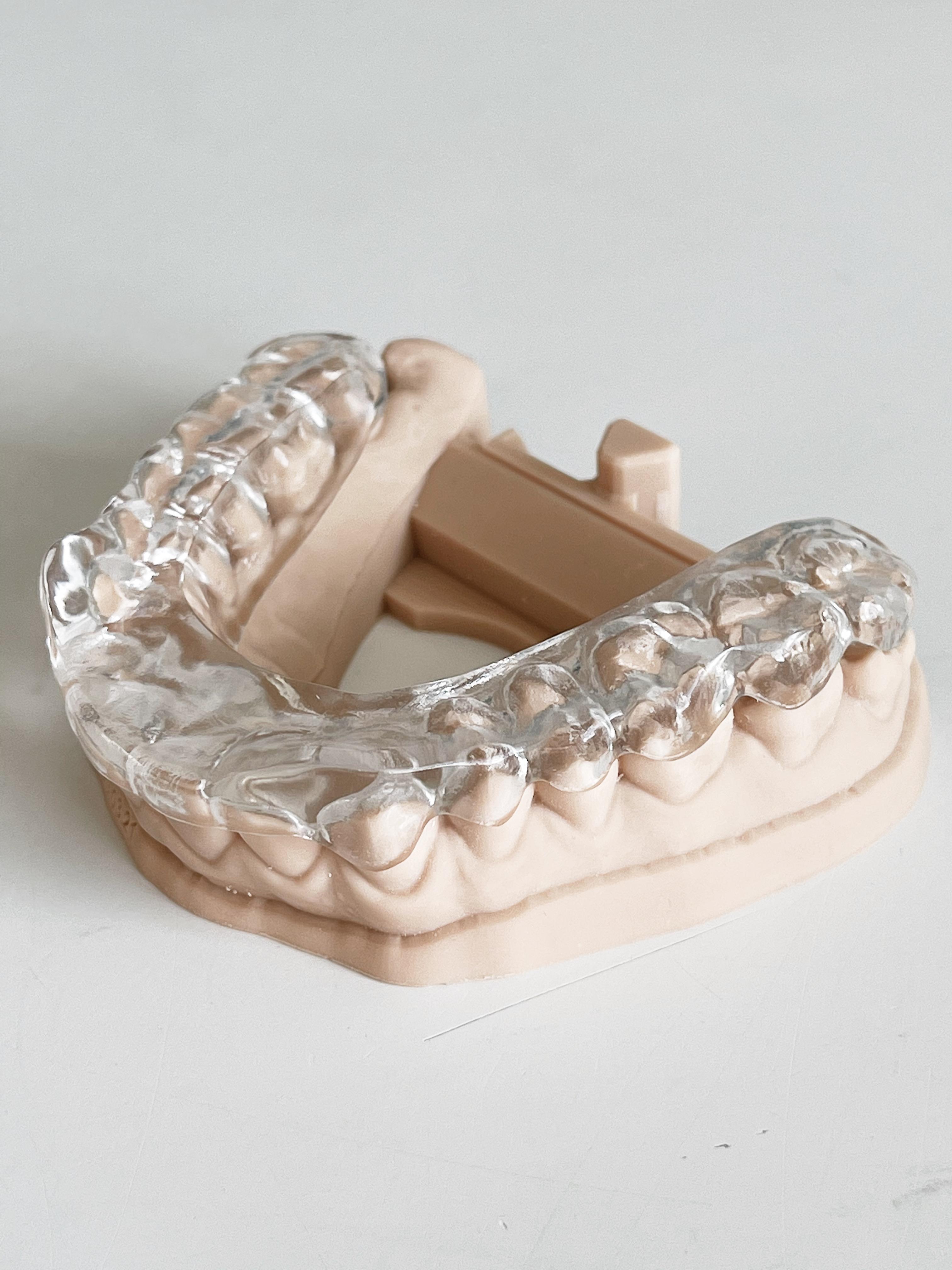 'Ich beisse mir die Zähne aus....'